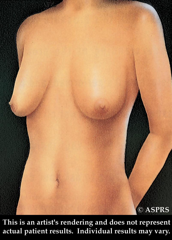 фото женской обвисшей груди